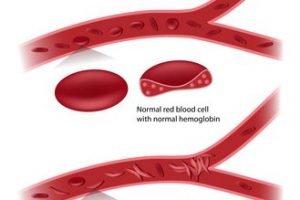 Αναιμία και ερυθρά αιμοσφαίρια